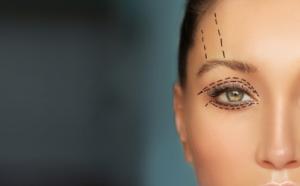 Eyelid-Surgery-Adelaide